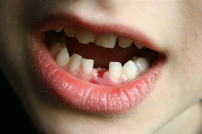 Nằm mơ thấy rụng răng liên quan đến sự bế tắc